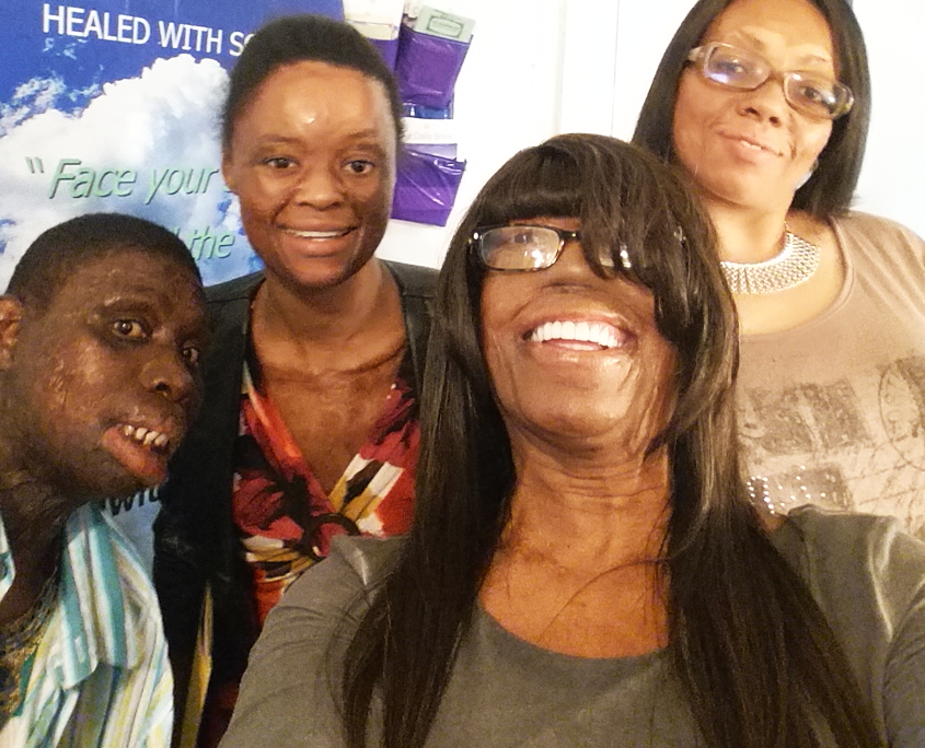 Healed with Scars, Burn Victims, Scarring from Burns, Support Group, Philadelphia, Pennsylvania, New Jersey, Rosemary Washington